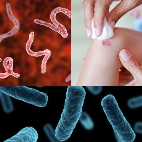 Imagen de una herida, bacterias y parásitos